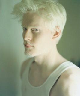 albinos &r