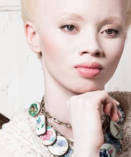 albinos &(